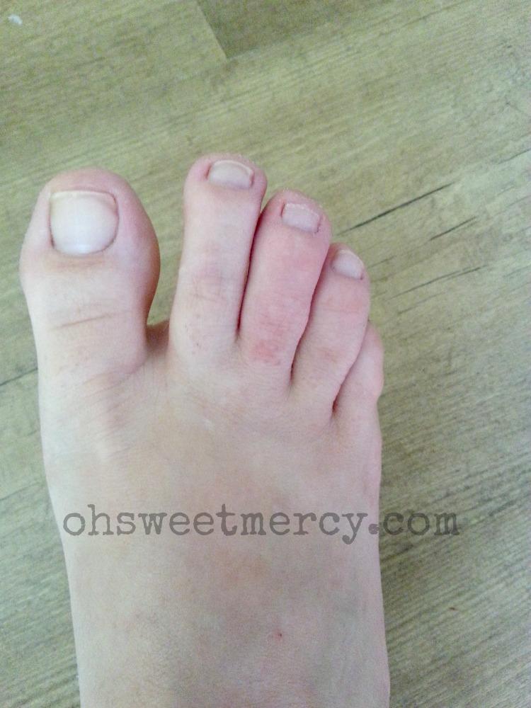 Swollen Toe Natural Treatment